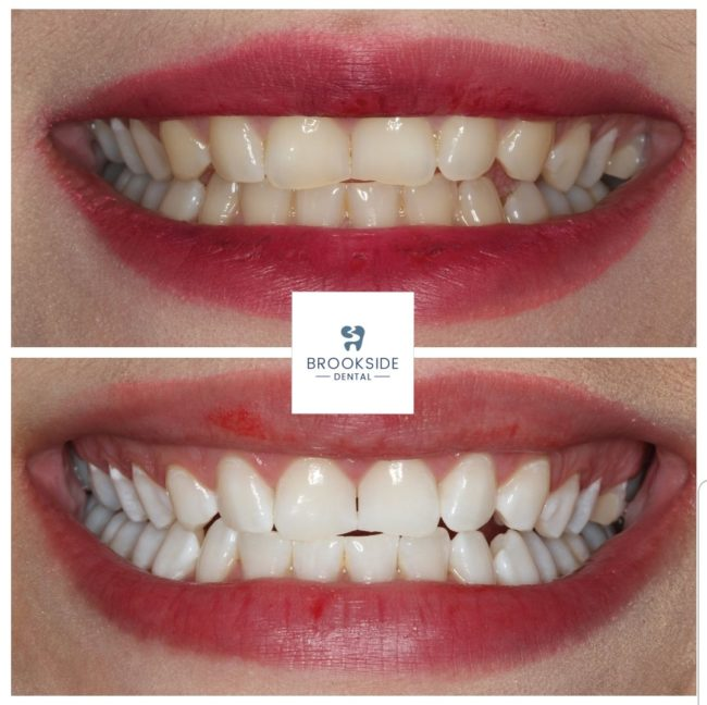 Teeth Whitening by Dr Ravi